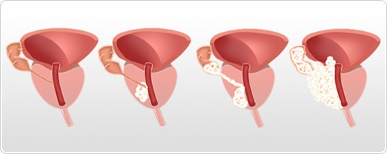 Prostat kanseri evreleri T1, T2, T3, T4