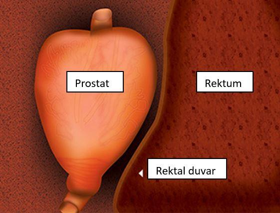 Prostat ve rektum duvarı arasındaki yakınlık sayesinde , tedavi özellikle intrarektal pozisyonda gerçekleştirilir.
