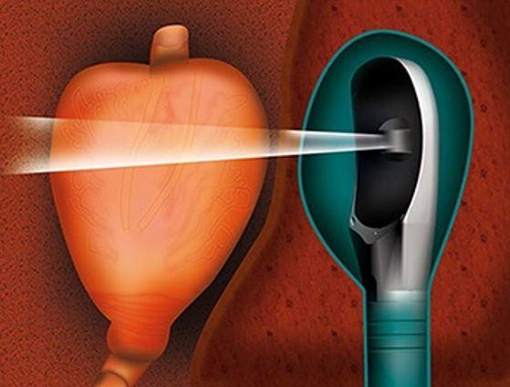 Tüm prostat, sondanın hareketleri ve bilgisayar programının aracılığıyla taranır ve yeniden yapılandırılır.