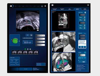 Ekranda, doktor tedavinin her adımını milimetrik hassasiyetle planlar.