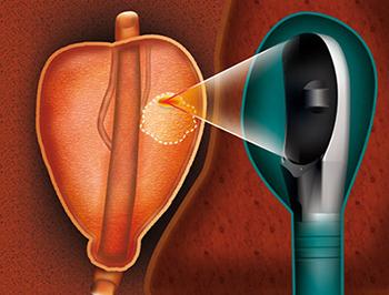 Son olarak, cihaz ürolog tarafından gerçekleştirilen planlamanın ardından en uygun sayıda lezyonu otomatik olarak tedavi eder.