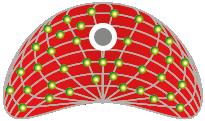 Curieterapi (radyum terapisi) veya brakiterapi - radyoaktif uygulamalar